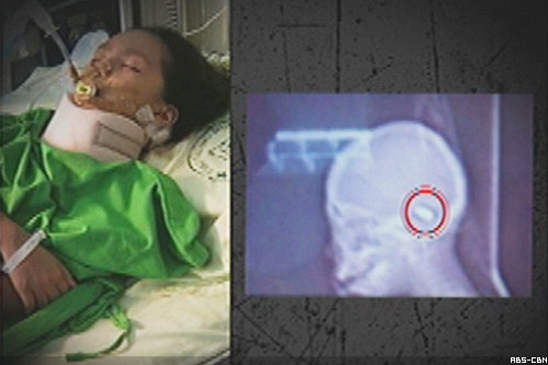 girl shot in muntinlupa misencounter dies filipino bum muntinlupa map