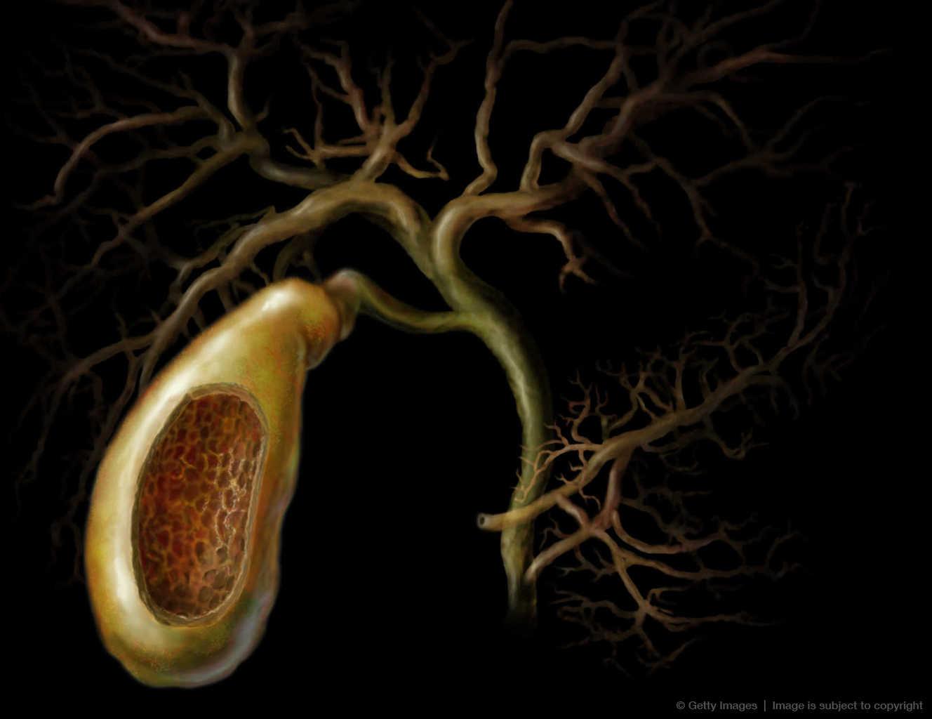 spleen removal for cancer